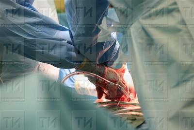 23.10.17 Показательная операция ведущих профессоров-кардиохирургов из США и Германии  ( фото: Михаил Захаров / ИА Татар-Информ )