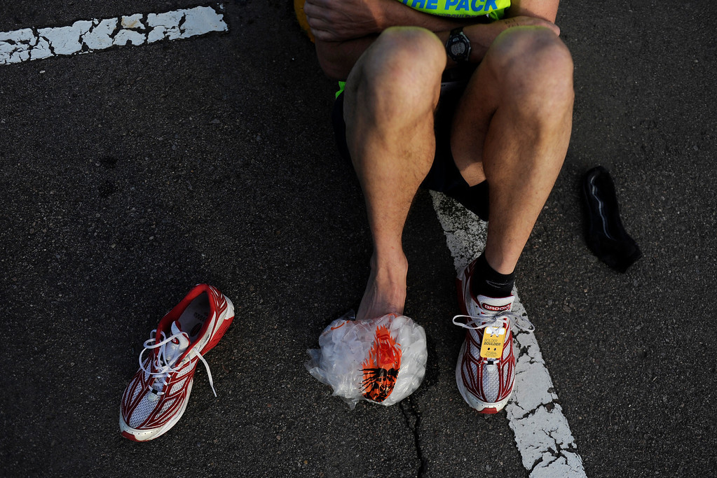 . Rob Rumkel ices his toe before the start of the 36th Annual Bolder Boulder 10K road race on Memorial Day, May 26, 2014. Rumkel said he fell down the stairs earlier in the week. (Photo By Lindsay Pierce/The Denver Post)