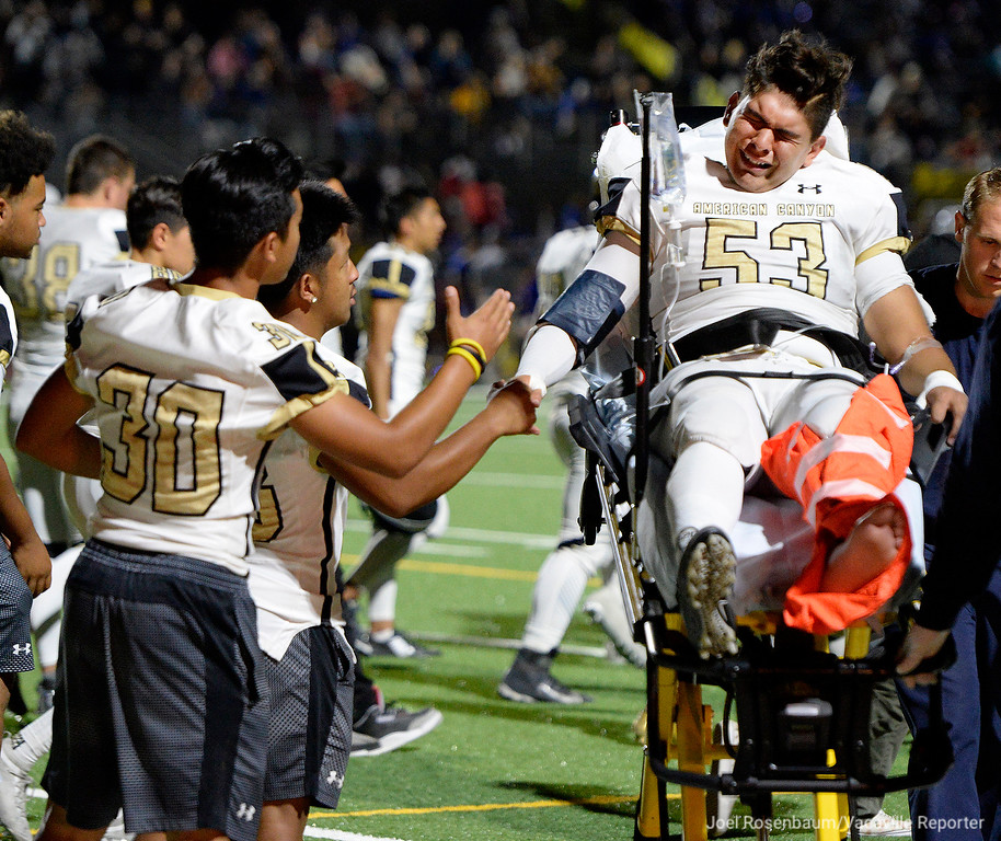 . American Canyon�s Jose Lopez shakes hands with his teammate as he is transported to a waiting ambulance by members of the Vacaville Fire Department after he suffered a compound fracture of his leg when he collided with a player from Will C. Wood High School while he attempted to kick an extra point during the first quarter of the Wolves 28-22 loss to the Wildcats Friday at Wildcat Stadium.