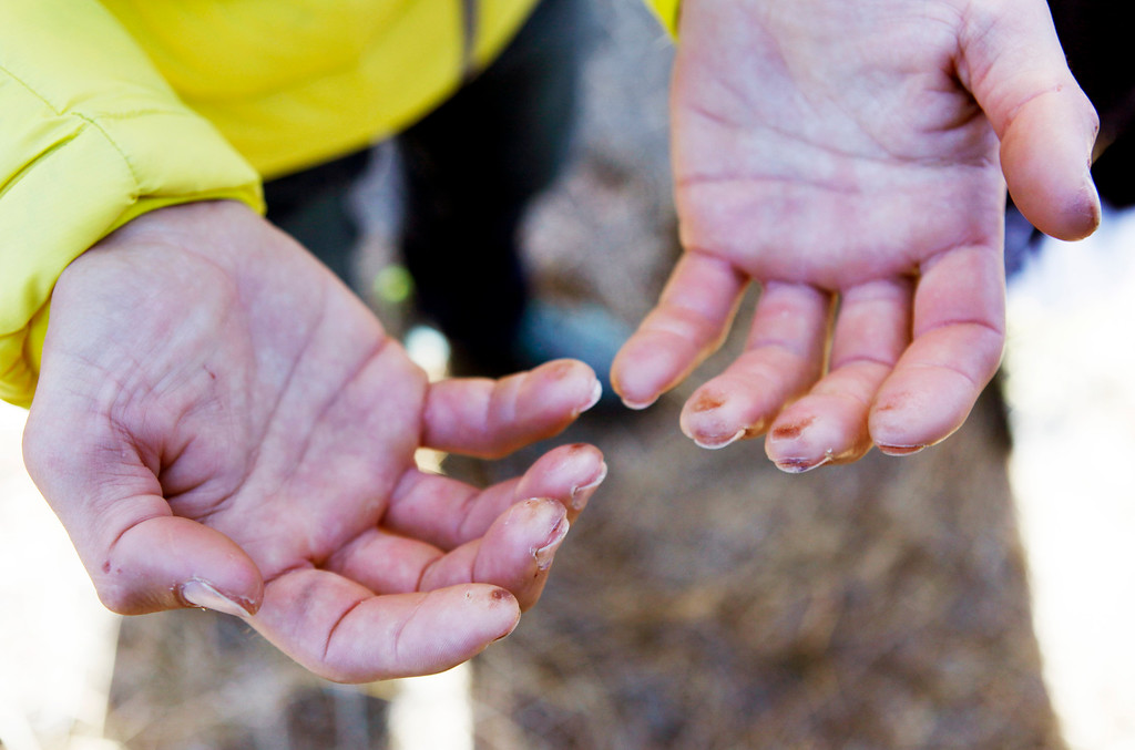 """. Kevin Jorgeson, 30, of Santa Rosa shows reporters his well-worn hands as he and Tommy Caldwell, 36, of Estes Park, Colo., speak to the media in Yosemite National Park, Calif., Thursday, Jan. 15, 2015. On Wednesday, the pair completed the ascent of the Dawn Wall of El Capitan. They were the first to do so as \""""free climbers,\"""" that is they performed their ascent without the assistance of ropes or other mechanical assistance other than being tethered to protect themselves from falls. The two men began their ascent of the half-mile of sheer granite on Dec. 27, 2014. (Patrick Tehan/Bay Area News Group)"""