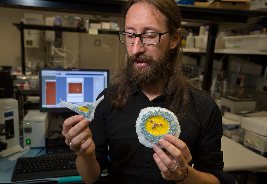 . Researcher Simone Bianco holds a scale model of a normal cell, left, and a cancerous cell, right, as he describes his work at IBM Almaden Labs in San Jose, Calif., Wednesday, Aug. 3, 2016.  IBM Almaden Labs will celebrate its 30th anniversary on August 11.  (Patrick Tehan/Bay Area News Group)