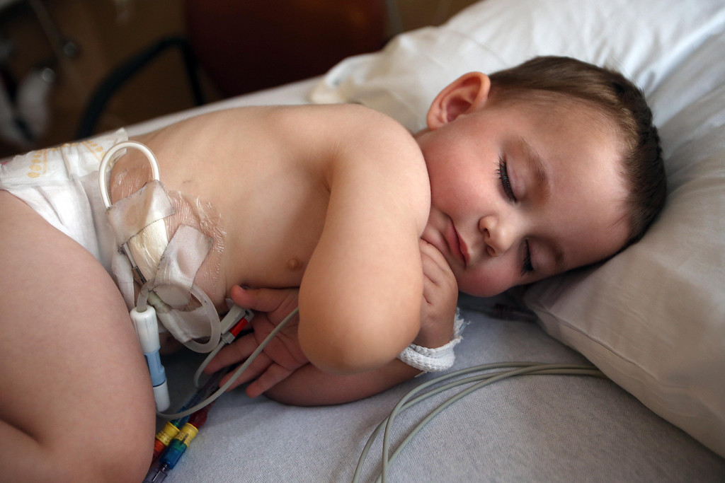 . Matthew Ouimet, 2, of Antioch, sleeps as he does dialysis while awaiting a liver and kidney transplant at the UCSF Benioff Children\'s Hospital in San Francisco, Calif., on Tuesday, June 4, 2013. (Jane Tyska/Bay Area News Group)