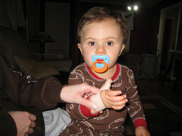 Jack cuts himself on a Glass Globe December 31, 2008