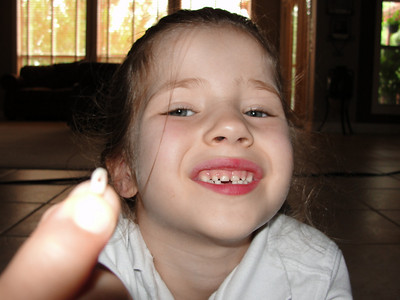 2010 - Miranda lost her first tooth!