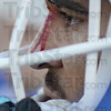 Tribune-Star/Jim Avelis<br /> Just a scratch: Brock Lough watches a play from the sidelines as blood trickles down his nose.