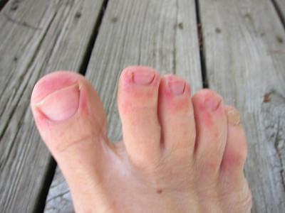 POOR toes