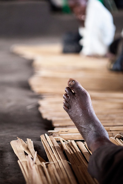 This man's bare foot shows the years of heavy toil under the hot African sun.