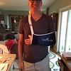 Thumb Surgery