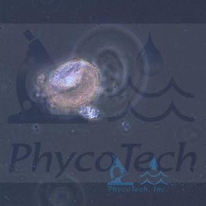 Conochilus