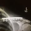 03 Yoav's Collar Bone Surgery