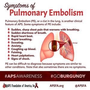 Symptoms of Pulmonary Emblolism