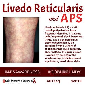 Livedo Reticularis and APS