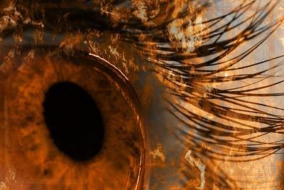Dry Eye 2
