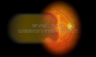 Slitlamp - Subretinal massive hemorrhage in AMD