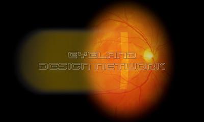Slit lamp exam - healthy eye