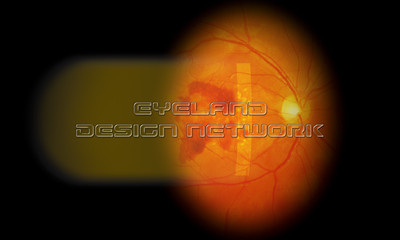 Slitlamp - neovascular AMD 001