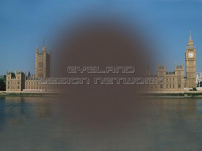 Central scotoma - London