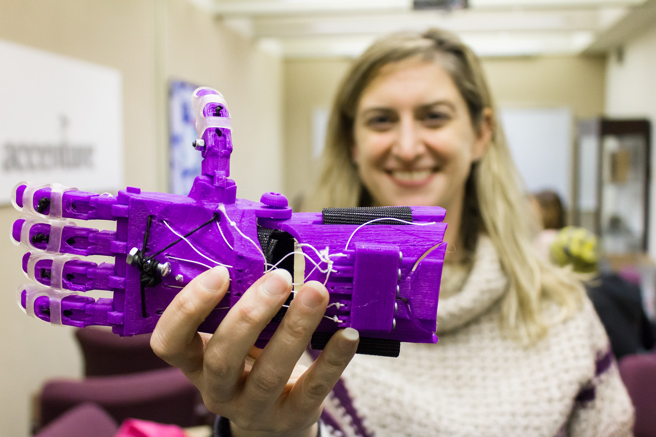 UAlbany 3D-printed prosthetic hand