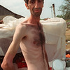 Trnopolje prisoners who had previously been held at Omarska and Keraterm showed signs of especially severe starvation and abuse.  Photographs by Andre Durand/AFP/Getty Images; © Robert Patrick/Corbis; and © Pascal Le Segretain/Corbis