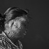 Salma Begum. Sirajgunj.<br /> <br /> On 15th July 2016, Salma got attacked with corrosive acid by her husband. Before and after they got married, Salma's husband had a relationship with another woman. Their marriage was arranged, and her husband wanted to get rid of Salma. The day before the attack, he had packed his belongings so that he could easily flee the home after the attack. After the attack, the police put a notice in the local papers, and three days later he got arrested.<br /> The acid ran into Salma's right ear, and today she has come to the Acid Survivors Foundation in Dhaka to plan and prepare for an operation to open up her ear.<br /> After the attack, Salma's husband and his brother wanted to discuss and settle the matters among themselves and within the family. But Salma did not agree, and her family filed a case with the police against her husband. Her husband has been in jail since he got caught, and the court case is still on-going.<br /> Salma wants to get divorced, but it is not easy. She cannot get divorced if her husband and his family do not agree. She is still waiting for their signatures on the papers to get the divorce.<br /> Salma has a daughter, who is eight years old. She has no job and depends on her parents. Her biggest worry is her daughter. Salma thinks that she has no future for herself, but her daughter should have one. Dhaka, 9th July 2018.