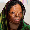 Ruhima is 40 years old and from Jessore. Ruhima was attacked by acid in 2010 - she cannot remember the date. There was a money dispute between her family and some neighbours. It was not only about money - they were also fighting over a tree in the village.