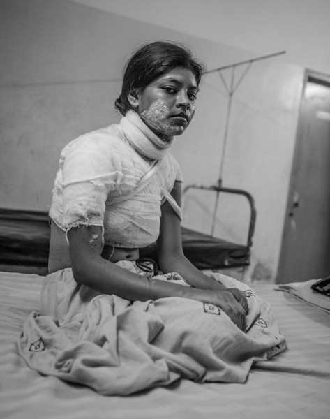 """Selina is 17 years old and from Matipur in Noakhali distrikt in Southern Bangladesh. Selina testified in a case where a group of young men had attacked her younger sister with acid. The name of her sister is Farhana, and she is 15 years old.  A group of young men harrassed her on her way to and from school. On 15th June 2010, they attacked her with acid. The other week it was her elder sister Selina's turn. <br /> The acid attackers wanted revenge against Selina, and one week ago broke into her house during the early hours and throw acid at her. She was punished by the criminals for testifing.<br /> Selina was admitted to the Noakhali Medical College Hospital after the attack and later to the Acid Survivors' Foundation Hospital in Dhaka as her condition deteriorated. <br /> <br /> Selina and Farhana's family has filed a case against six known criminals, who are from the local area. Selina had testified against them before the district court recently, and all the accused obtained bail. After they were released they attacked Selina. <br /> The father of Selina and Farhana died last year. Their mother, Mazeda, was saying to a local newspaper:  """"There is no justice in this country. My younger daughter did not get justice and now the elder one has become a victim of the same crime. What is the use of our survival? I along with all my daughters will commit suicide by taking poison"""". <br /> <br /> Some of the criminals have been arrested by the local police."""