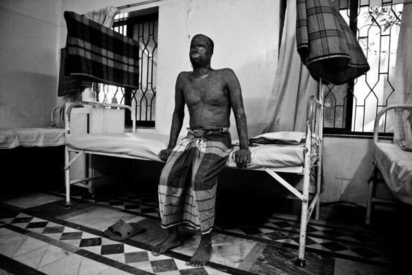 Acid Survivors in Bangladesh