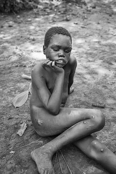 With numerous burns and scars from previous falls clearly visible on his extremities and face, Samuel sits on the ground waiting for his parents to return after a morning tending the small plot of maize behind the family compound.