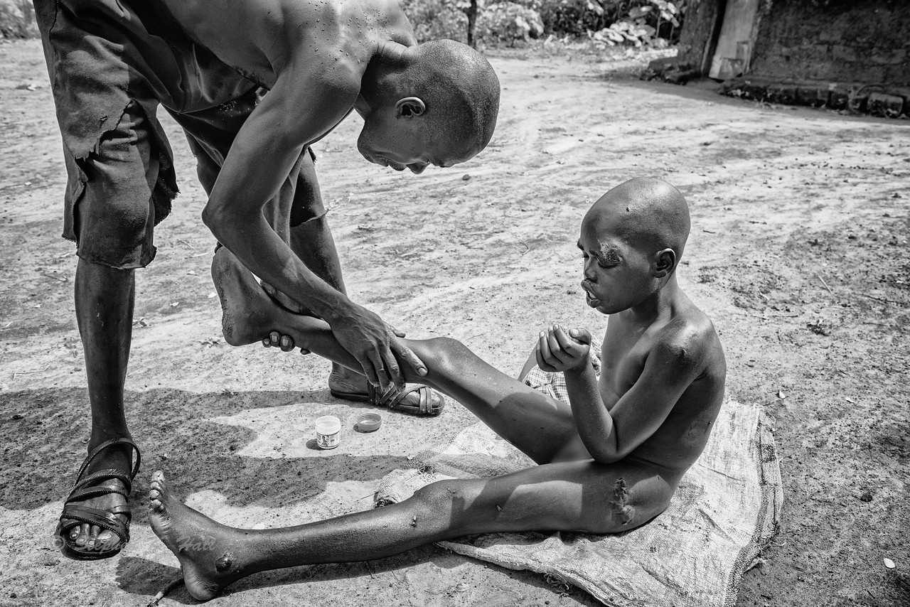 After a bath as preparation for an early afternoon meeting with health care providers and other nodding syndrome patients at the nearby local health center, Samuel's father applies an emollient to his son's continually dry skin.