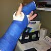Broken finger with cast, one week prior to start of trip!