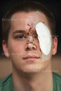 Sal Laffra werd afgelopen weekend zwaar mishandeld in Club Envy in Zoetermeer. Hij kreeg glassplinters in zijn ogen - LEIDSCHENDAM 16 APRIL 2013 - FOTO NICO SCHOUTEN