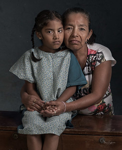 Children with Strabismus - Hospital Leon Becerra , Ecuador