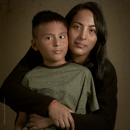 Strabismus, Ecuador, Leon Becerra