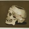 Dr. R's Skull by Beth Van Hoesen