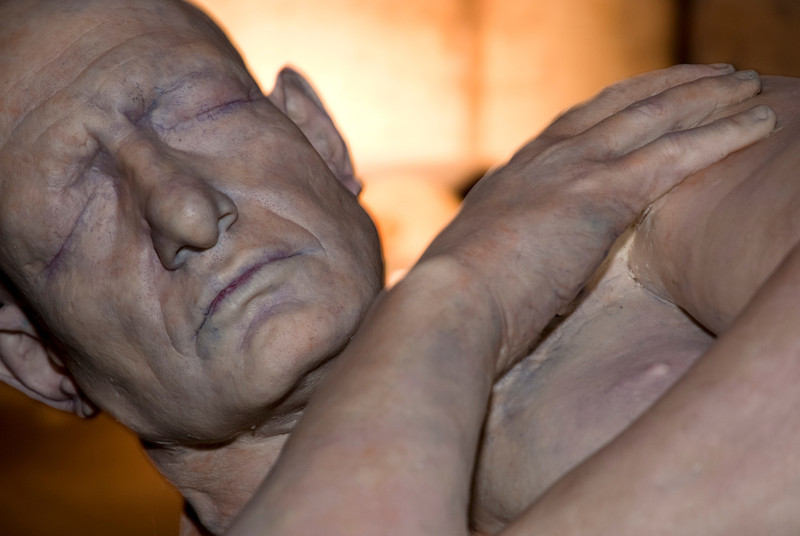 Wax sculpture by medical artist, Pascale Pollier. London, 2012