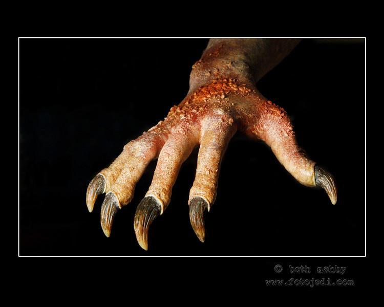 'Dermatophobia'<br /> 2008