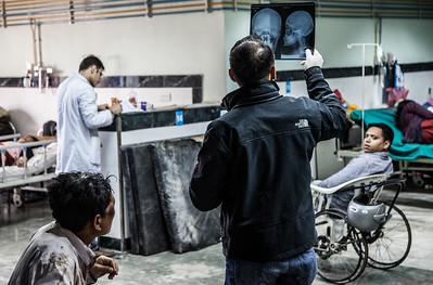 Doctor examining injured skull x-ray at Kathmandu trauma.