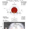 Partial Lunar Eclipse details - July 16 2019