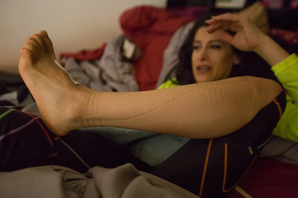 April 6, 2014 -- Lynn Crisci lies in her Boston, Mass., apartment bed, removing compression garments that she wears almost all the time to keep her joints in place, and minimize injury while running. Crisci has a connective tissue disorder that renders her joints hypermobile, and connective tissue very difficult to heal, if torn or injured. Crisci participated in the Marathon for the first time this year. Photograph by Carolyn Bick/BU News Service 2014.