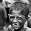A boy who lives in a slum. After the picture was taken, he was beaten brutally in the face by his mother for not having worked hard enough in the morning. His handicap is met with physical punishment.
