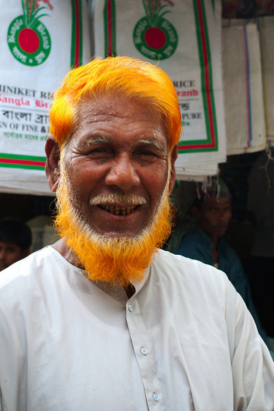 A victim of henna hair dye!