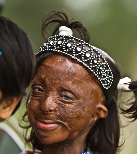 A girl who got attacked with acid. The best smile I got that day.