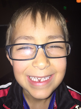 Rémy lost his first tooth!