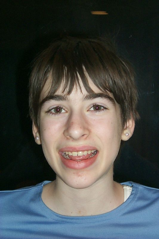 <b>Beth no braces</b>   (Apr 05, 2000, 06:43pm)