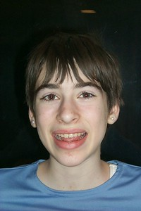 Beth no braces   (Apr 05, 2000, 06:43pm)