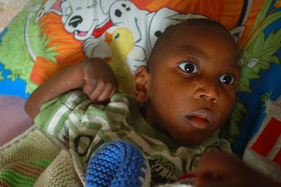 Miky is another one of the effective babies at Wings. He is a wonderful kid, who, along with Delome, has a growth hormone issue. While miky is physically a 2 year old, he is around 6 years old.  Unfortunately, he lost his battle and passed away on January 2, 2008.