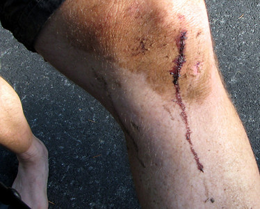 The Downieville Gods require a little blood.