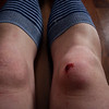 07 December 2008 - Bike riding when there's ice underneath the snow = not fun!  My back end slid out and my knee slammed into the ice.  Some nice men gave me and my bike a ride home, then I limped home and iced the lump on my knee.