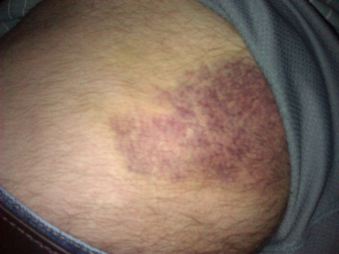 And the matching bruise on my hip. This is only part of the bruise, but since this site is PG-13, I cannot show the full bruise.