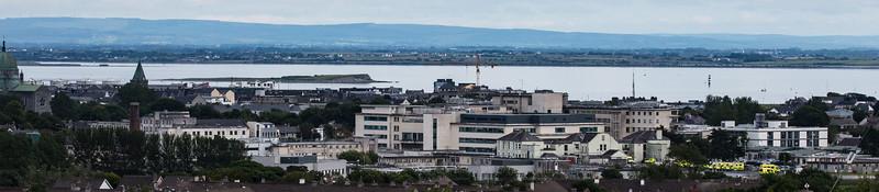 University College Hospital, Galway (UCHG)